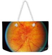 Retinal Papilledema Weekender Tote Bag by Science Source