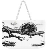 Sections Of Dissected Artery Weekender Tote Bag