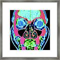 Coloured Ct Scan Of A Normal Skull Framed Print