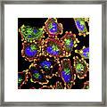 Metastatic Melanoma Cells Framed Print