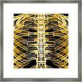 Ribcage, Computer Artwork Framed Print by Pasieka
