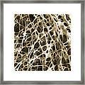 Sem Of Human Shin Bone Framed Print by Science Source