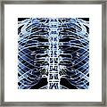 Ribcage, Computer Artwork Framed Print