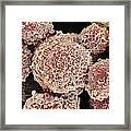 Cervical Cancer Cells, Sem Framed Print