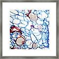 Black Scab Infection, Light Micrograph Framed Print