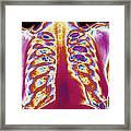 Coloured Chest X-ray Of A Healthy Woman Framed Print