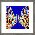 Coloured X-ray Of Hand In Gouty Arthritis Framed Print