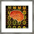 Brain Composite Framed Print