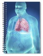 Obesity Spiral Notebook