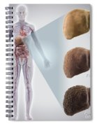 Stages Of Liver Disease Spiral Notebook