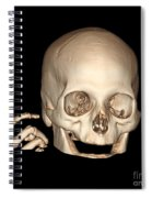 3d Ct Reconstruction Of Head And Hand Spiral Notebook