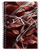 Candida And Epithelial Cells Spiral Notebook