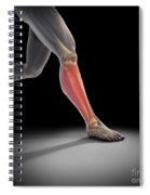 Medial Tibial Stress Syndrome Spiral Notebook