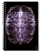 Blood Supply To The Brain Spiral Notebook