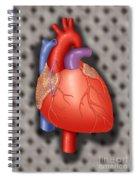 Coronary Vein Graft Spiral Notebook