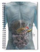 Distal Pancreatectomy Spiral Notebook