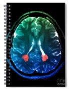 Mri Of Heterotopic Gray Matter Spiral Notebook
