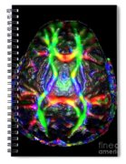 Normal Brain Diffusion Tractography Spiral Notebook