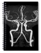 Normal Intracranial Mra Spiral Notebook