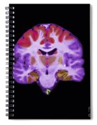 Brain Areas Affected By Alzheimers Spiral Notebook
