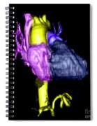 Color Enhanced 3d Cta Of Heart Spiral Notebook