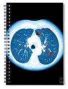 Emphysema On Ct Chest Spiral Notebook