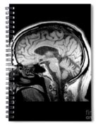 Mri Of Alcoholism Related Vermian Spiral Notebook