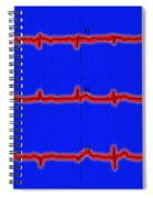 Normal Ecg Spiral Notebook