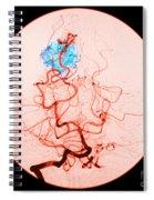 Occipital Lobe Avm Spiral Notebook