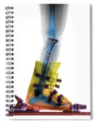 X-ray Of Broken Bones In Ski Boot Spiral Notebook