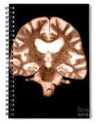 Mri Of Brain With Alzheimers Disease Spiral Notebook