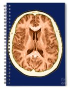 Normal Cross Sectional Mri Of The Brain Spiral Notebook