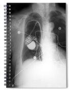 Pacemaker Spiral Notebook