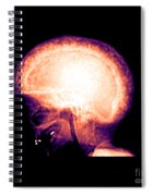 Pagets Disease Spiral Notebook