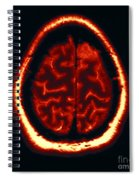 Mri Of Normal Brain Spiral Notebook
