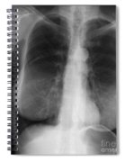 Chest X-ray Of Female Spiral Notebook