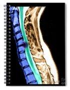 Herniated Disc In Cervical Spine Spiral Notebook