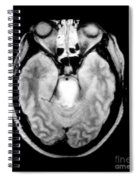 Mri Of Brainstem Glioma Spiral Notebook