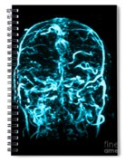 Mri Of Venogram Of Dural Sinus Spiral Notebook