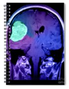 Right Sided Meningioma Spiral Notebook