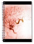Serpentine Aneurysm Spiral Notebook