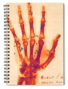 X-ray Of Gunshot In The Hand Spiral Notebook