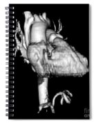3d Ct Reconstruction Of Heart Spiral Notebook