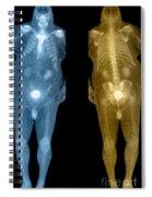 Bone Scan Spiral Notebook