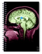 Mri Colloid Cyst Of Third Ventricle Spiral Notebook