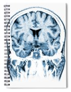 Normal Coronal Mri Of The Brain Spiral Notebook