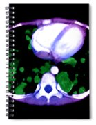 Metastatic Disease Of The Lungs Spiral Notebook