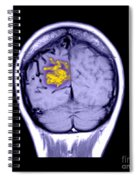 Mri Of Arterial Venous Malformation Spiral Notebook