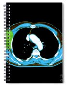 Non-hodgkins Lymphoma Spiral Notebook