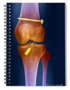 Acl Knee Repair X-ray Spiral Notebook